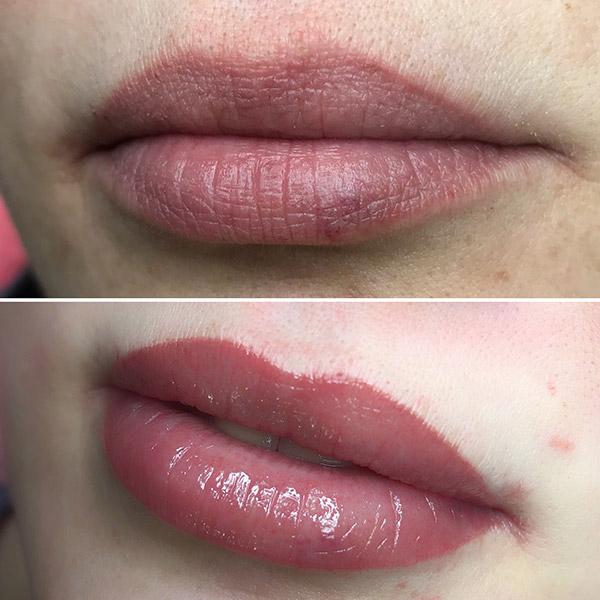Сделать корекцию губ